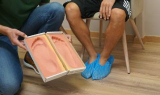 Casting for orthotic manufacturing